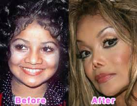 Before Surgery Plastic Surgery Before And After Photos 16 Pics