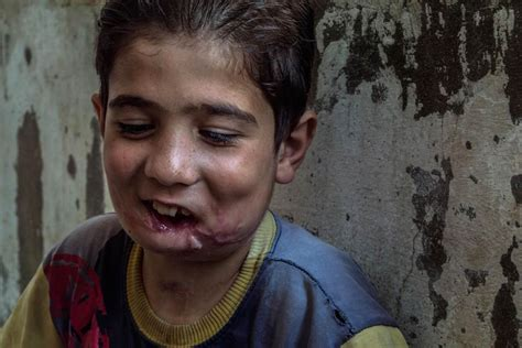 boy s shot during cookies and milk a syrian boy s story nbc news