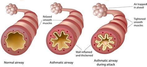 asthma diagram living with asthma asthma foundation nz