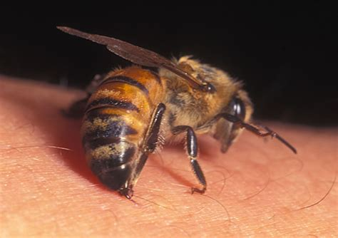 bee sting on a honey bee stingers and sting reactions 16killerbeestinging jpg