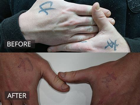 melbourne tattoo removal laser removal melbourne the doc clinic hoppers