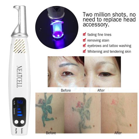 picosecond laser tattoo removal picosecond pico second picosured laser machine