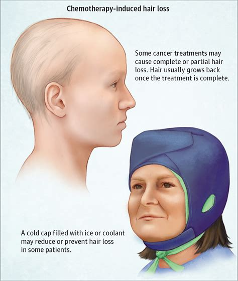 hair loss after chemotherapy chemotherapy induced hair loss alopecia oncology