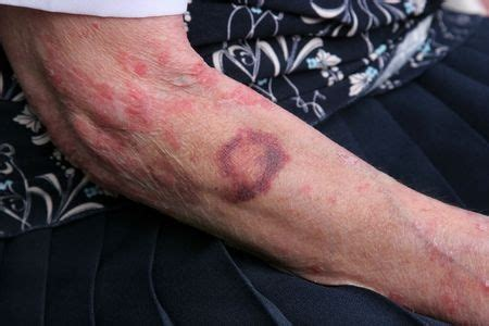 bed sores symptoms signs of nursing home abuse bed sores anthony carbone pc