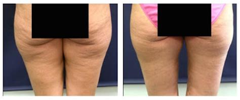 knee lift surgery before and after knee lift surgery human surgeryes thighplasty