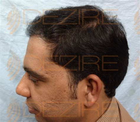 best hair replacement best hair replacement method done at dezire clinic pune