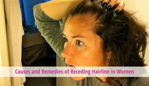 pics of natural hairstykes for women receding hairlines natural remedies for thinning edges