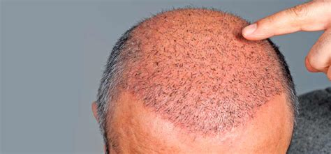 merica mexico hair transplant sa 231 ekimi 214 ncesi dikkat edilmesi gerekenler mide