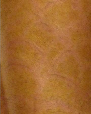 tattoo removal fort lauderdale best removal in fort lauderdale fl bad habits