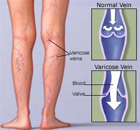 8 Symptoms Of Varicose Veins by Varicose Veins Causes Symptoms And Treatment Mediologiest