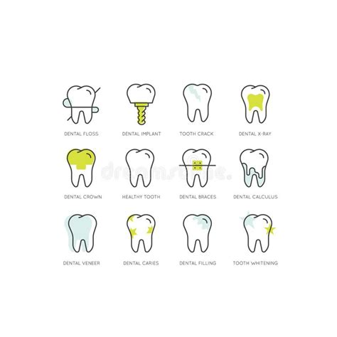 dental tooth braces installation process aesthetics orthodontist stock vector illustration