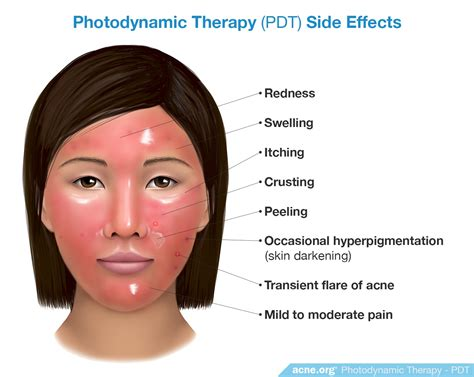 does light therapy work for acne does photodynamic therapy work for acne acne org
