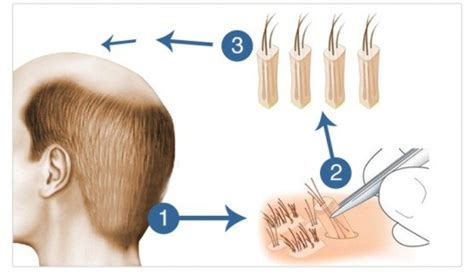 male pattern baldness name what is the treatment for male pattern baldness in india
