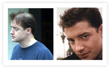 himesh reshammiya hair transplant celebrity hair transplants in fashion for bald celebrities