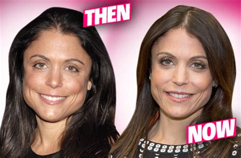 bethenny frankel plastic surgery before and after bethenny s had invasive traumatic plastic surgery to