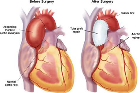 Plastik Wrap Di Lung aorta repair replacement endovascular surgery einstein