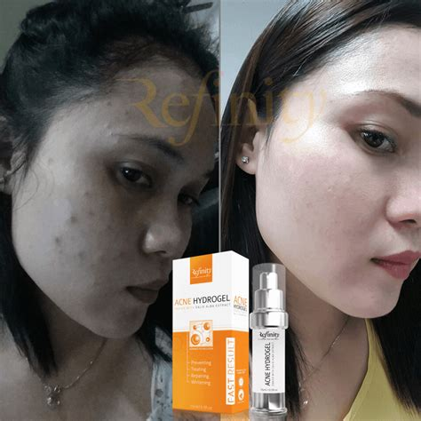Harga Acne Hydrogel ciklilyputih the lifestyle refinity acne hydrogel