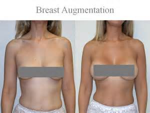 Breast Augmentation Silicone Implants Looking Feels 174
