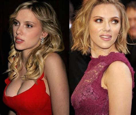 breast lift before and after photos plastic surgery scarlett johansson plastic surgery breast reduction