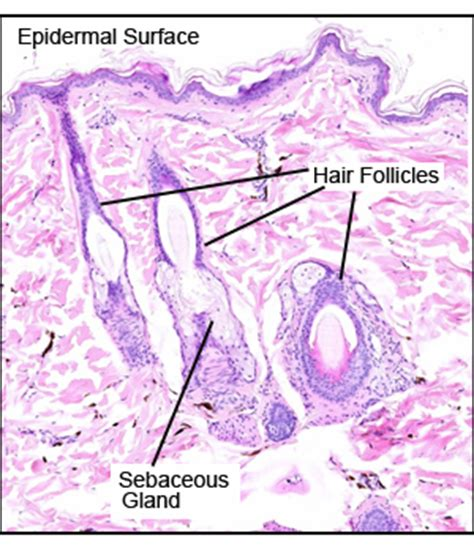 Hair Follicals Thinning During Detox by Thin Skin With Hair Follicle And Glands Histology