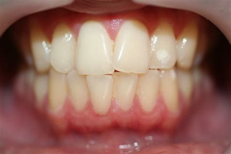 invisalign pearl cosmetic dds
