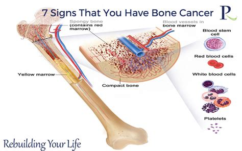 7 Telling Signs That You Are In by Read About 7 Signs That You Bone Cancer