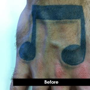 indianapolis tattoo removal before and after laser removal photos