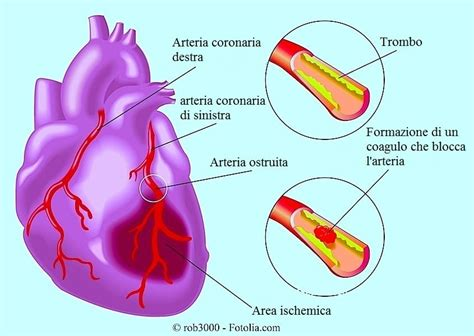 L Infarto Del Miocardio | infarto del miocardio sintomi e terapia