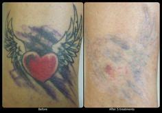 tattoo vanish healing process 1000 images about vanish laser tattoo removal progression