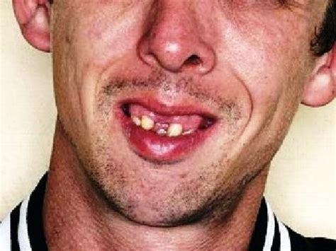 imagenes de locas feas image gallery dientes feos