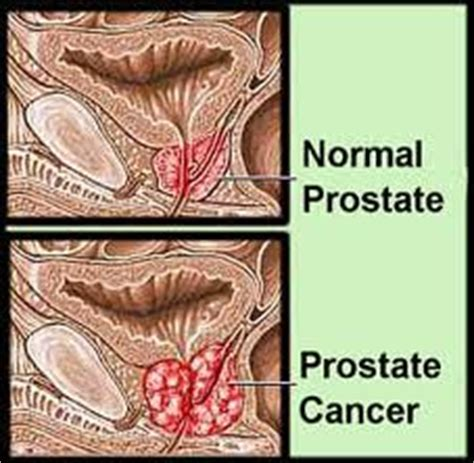 cannabinoids may inhibit prostate cancer cell growth