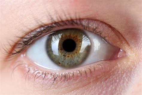 Eye Freckles Dark Spots On Iris May Be Caused By Sun Eyeball Pics