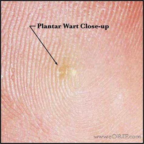 Start Of Planters Wart by Plantar Warts Athletiek