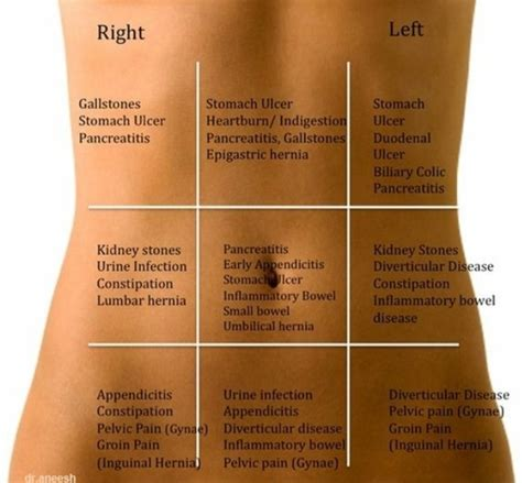 pain body body pain chart body pain pinterest pain d epices charts and heavens