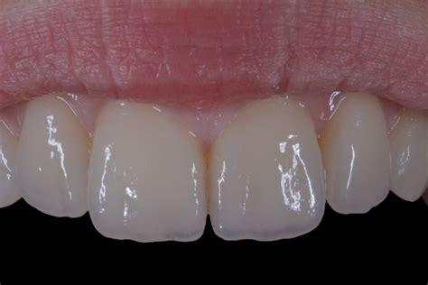 piombatura denti ceramica integrale e restauri estetici l incredibile