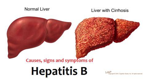 Hiu Hepafit Herbal Hepatitis Liver 2 factoid friday hepatitis b gastroenterologist in orlando fl