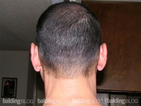 hair style for men haur transplant scar using couvre to mask linear hair transplant scar with