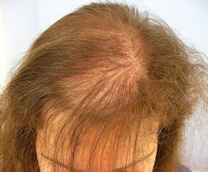youtube female pattern baldness female baldness the glasgow clinic