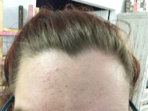 large bump on hairline near right temple general health 23 and never had acne general acne discussion acne org