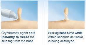 how to remove a skin tag at home 107 best images about www skintots on