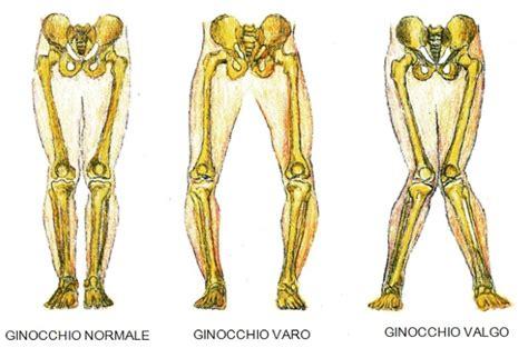 collaterale interno ginocchio lesione dei legamenti collaterali maledetto ginocchio