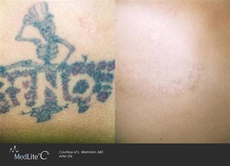 laser tattoo removal wilmington dermatology center