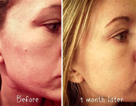 i got rid of all my deep rolling acne scars with msm cream i got rid of all my deep rolling acne scars with msm cream