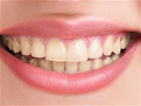 Pemutihan Gigi Di Klinik mini dental lab 6 cara memutihkan gigi kuning secara