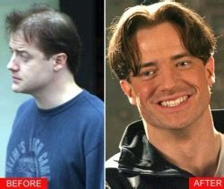 did bruce jenner have hair plugs celebrities before and after hair transplants