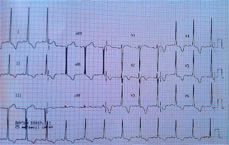 strain pattern ecg definition ecg class keeping ecgs simple ischaemia secondary to
