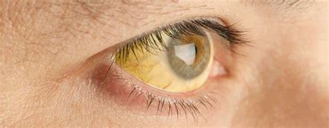Obat Cara Memutihkan Mata Yang Kuning bagaimana cara mengobati mata kuning yang uh
