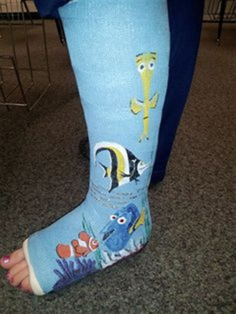 Decorate Your Cast by Cast Decorating On 19 Pins
