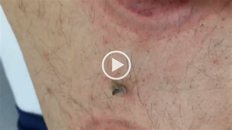 ingrown pimple on back very large pimple back viral on the web now