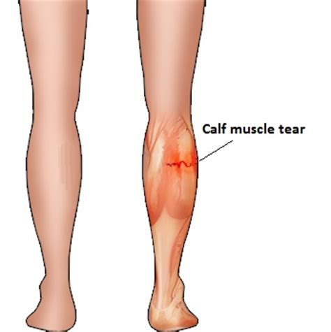 freehand calf muscle skin tear calf muscle tear5 valleys physio